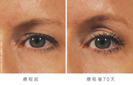 img_template_beforeafter_brow12