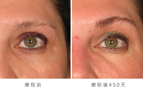 img_template_beforeafter_brow5