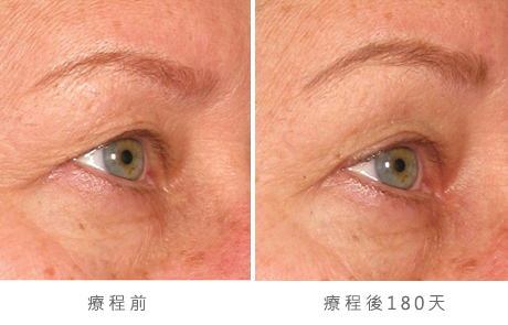 img_template_beforeafter_brow7