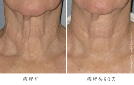 ultherapy-bl0017_90day_1tx_neck_gallery