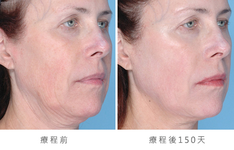 before_after_ultherapy_results_full-face22