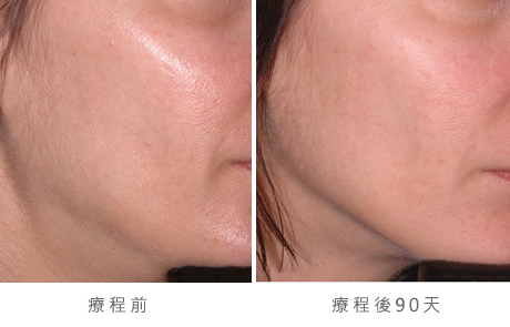 before_after_ultherapy_results_under-chin32