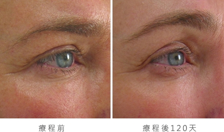 img_template_beforeafter_brow11