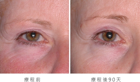 img_template_beforeafter_brow14