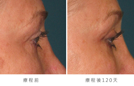img_template_beforeafter_brow3