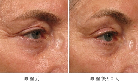 img_template_beforeafter_brow6
