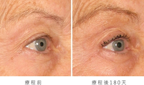 img_template_beforeafter_brow8