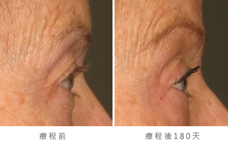 img_template_beforeafter_brow9
