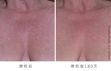 ultherapy-0001-0093ah_180day_1tx_chest_gallery
