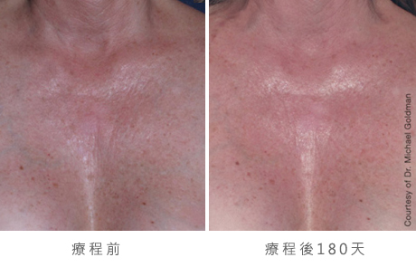 ultherapy-0005-0093ah_180day_1tx_chest_gallery