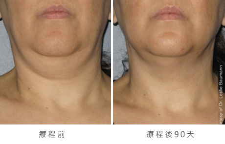 ultherapy-0014-0086w_90day_1tx_neck_gallery